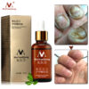 Fungus Removal Gel for nails