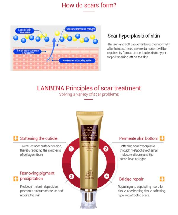 lanbena scar gel features