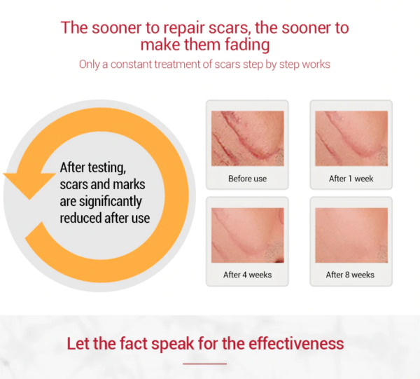 scar gel for scars and acne treatment