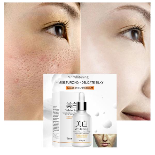 v7 serum for whitening