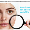 baimiss acne cure treatment cream