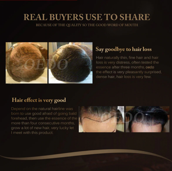 morroco hair growth essence