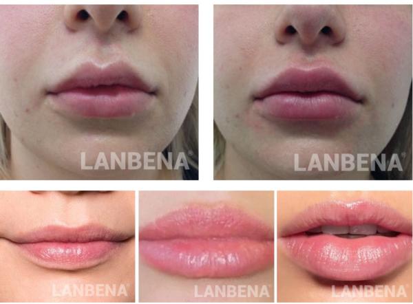 lanbena lips care serum