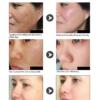 results of lanbena hyaluronic acid serum