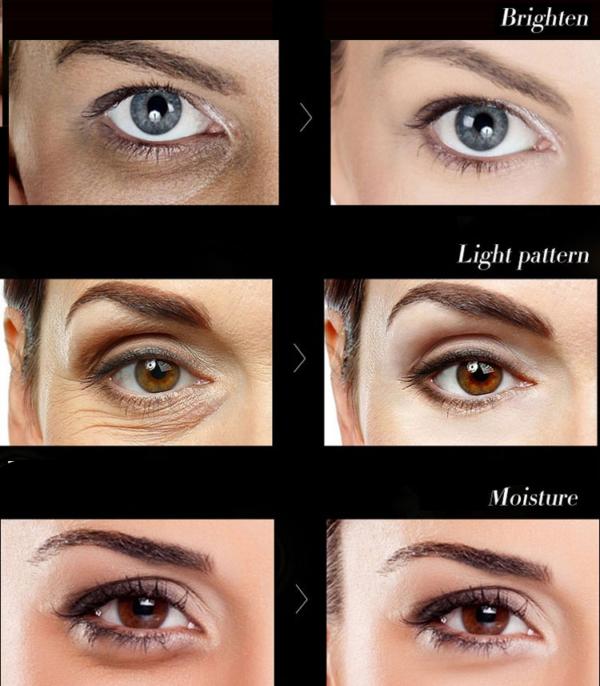dr rashel eye serum results